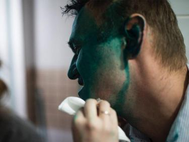 Заляха със зелена боя политическия опонент на Путин (СНИМКИ)