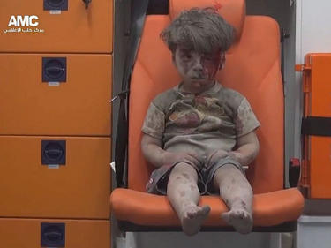Едно изплашено и окървавено момченце от Алепо година по-късно (ВИДЕО)