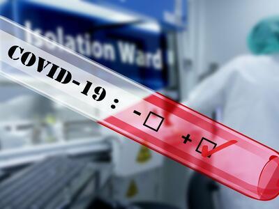 Още един почина от COVID-19 у нас, жертвите вече са 24